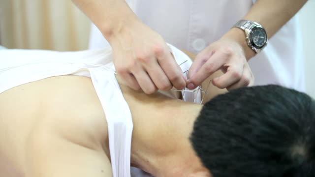 acupuncture - acupuncture bildbanksvideor och videomaterial från bakom kulisserna