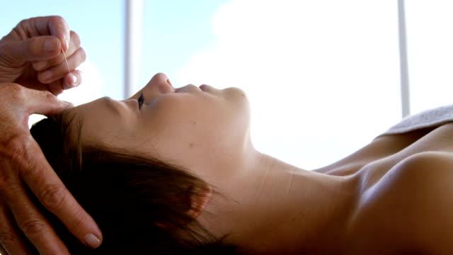 akupunktör håller en nål - acupuncture bildbanksvideor och videomaterial från bakom kulisserna