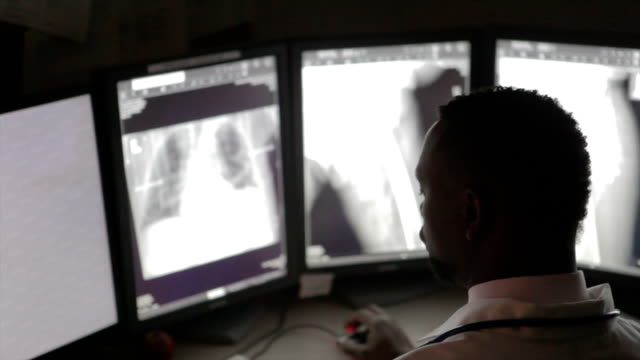 African American Radiologist African American Radiologist reading x-rays in hospital radiologist stock videos & royalty-free footage
