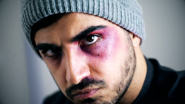 vídeos y material grabado en eventos de stock de hombre agresivo con el rostro herido mira amenazadoramente a la cámara, de cerca - ojo morado