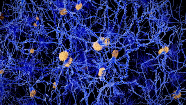 Alzheimer disease, neurons with amyloid plaques video
