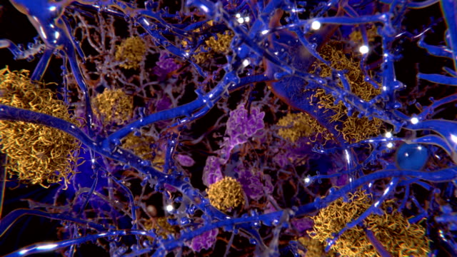 Alzheimer disease The foreground cells are healthy neurons. protein stock videos & royalty-free footage