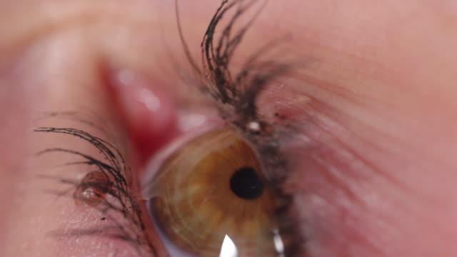 SLOW MOTION MACRO: Amber eye blinks when eye drop makes contact with dry cornea