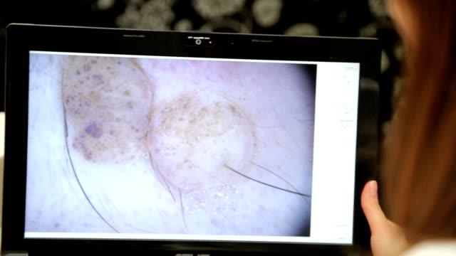 Análisis de los lunares en su computadora portátil - vídeo