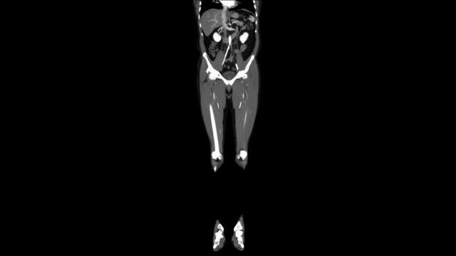 Angiogram Runoff video