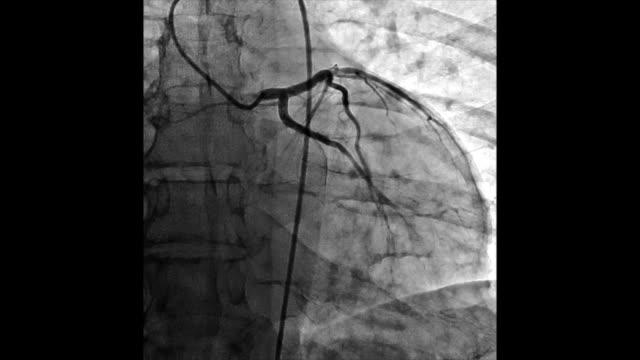 vídeos y material grabado en eventos de stock de angiografía de los vasos del corazón - arteriograma