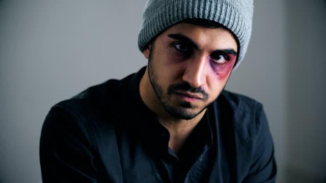 vídeos y material grabado en eventos de stock de aspecto enojado de un joven herido hombre de latina-interior - ojo morado