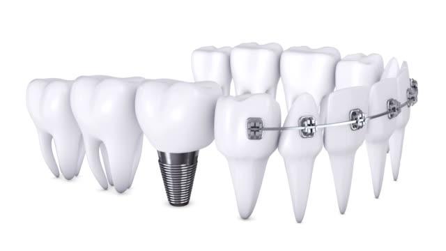 アニメーション歯科用ブラケット - 歯科点の映像素材/bロール