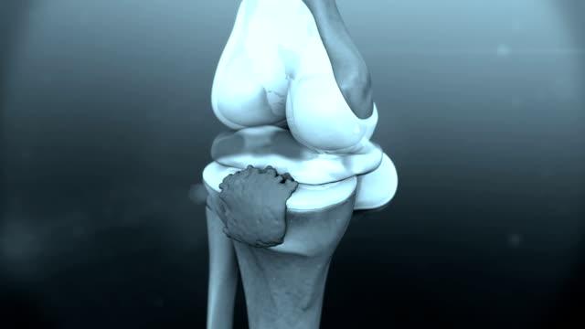 animation of human knee disease video