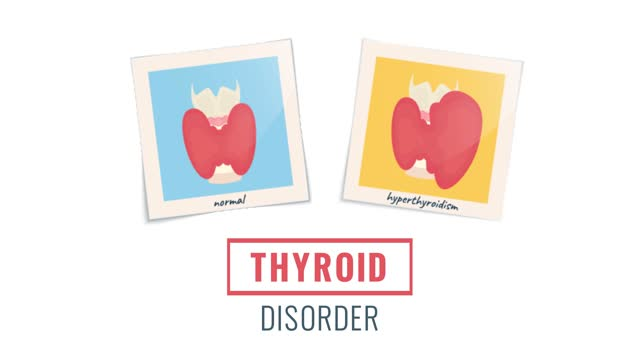Animation of hyperthyroid and healthy thyroid glands Cartoon animation of photo frames of hyperthyroid and healthy glands.  Growing goiter vs normal thyroid in front view. Human body organ anatomy. Medical concept. Seamless looped motion graphics. hypothalamus stock videos & royalty-free footage