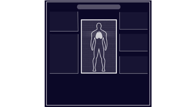 Animation of medical examination Medical infographic, video with alpha channel enabled test results stock videos & royalty-free footage