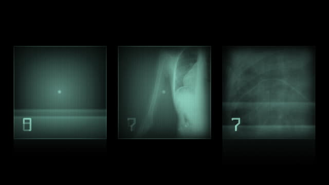animation - x-ray panels on black background animation - x-ray panels on black background scandal abc stock videos & royalty-free footage