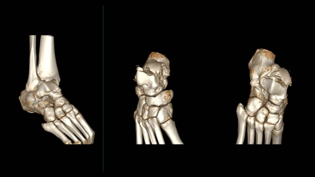 CT ankle joint or CT Scan of Right ankle 3D rendering image rotating on the screen showing fracture talus bone. CT ankle joint or CT Scan of Right ankle 3D rendering image rotating on the screen showing fracture talus bone. ankle stock videos & royalty-free footage