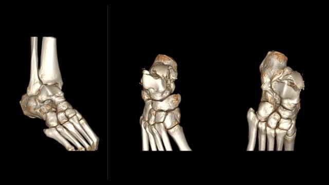 ct ayak bileği eklem veya ct sağ ayak bileği 3d görüntü kırık talus kemiği gösteren ekranda dönen imaj tarama. - i̇nsan i̇skeleti stok videoları ve detay görüntü çekimi