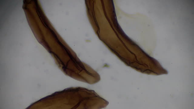 Anopheles eggs under light microscopy Anopheles eggs under light microscopy parasitic stock videos & royalty-free footage