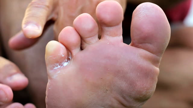 Applying Special Ointment To Athletes Foot Fungus video