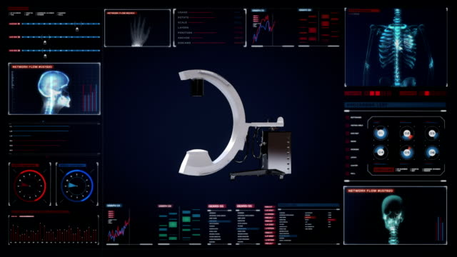 C Arm X-Ray Machine Scanner in digital display dashboard. C Arm X-Ray Machine Scanner in digital display dashboard, medical diagnosis technology. mammogram stock videos & royalty-free footage