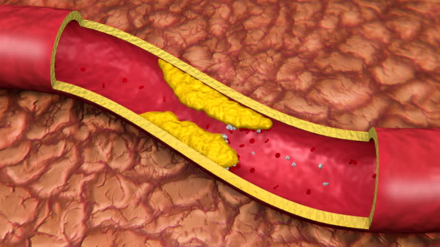 Artery Clot with Platelets Animation (HD) video