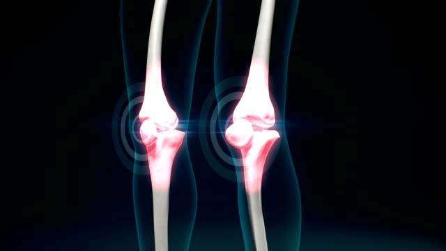 arthritis des schmerzes knie. gesundes gelenk und ungesundes schmerzhaftes gelenk mit arthrose. 4k.1. - menschliches gelenk stock-videos und b-roll-filmmaterial