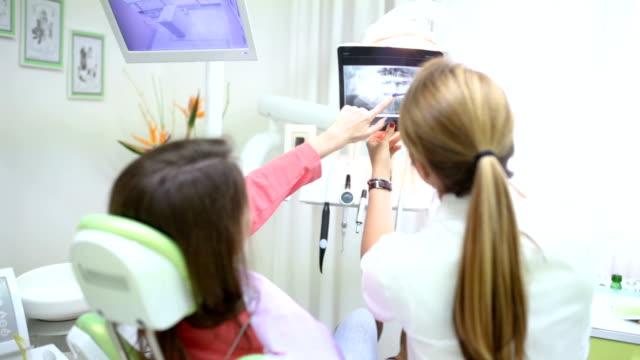 あなたの歯が非常によくは、ご覧の通り - 歯科点の映像素材/bロール