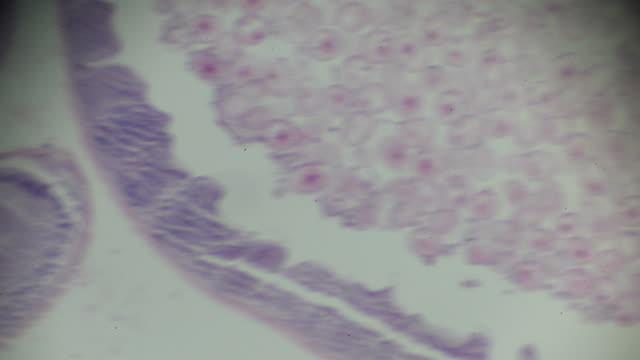 Ascaris C.S. under light microscopy