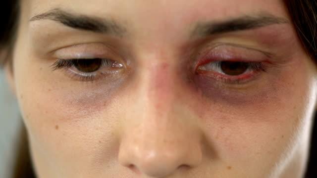 donna vergogna con il volto contuso che guarda la telecamera, stop al bullismo, violenza - violenza donne video stock e b–roll