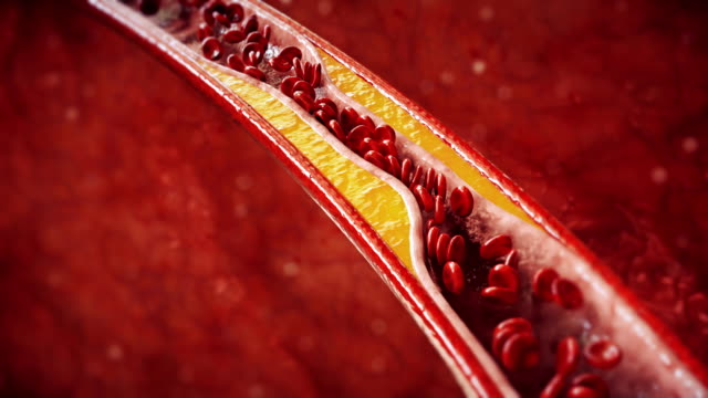 Atherosclerosis | Coronary Artery Disease 3D Animation of Atherosclerosis - 3840x2160 blood vessel stock videos & royalty-free footage