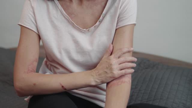 vídeos y material grabado en eventos de stock de dermatitis atópica en los brazos - alergias alimentarias