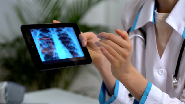 Attractive medical doctor is showing to female patient a X-ray picture on tablet video