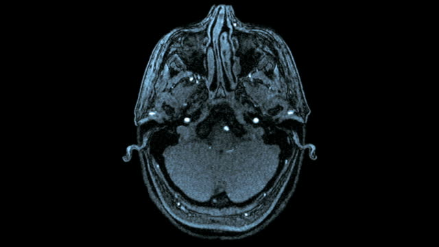 Axial MRI Scan Of Human Brain (Blue Toned) Axial MRI scan of the brain of a healthy woman tomography stock videos & royalty-free footage