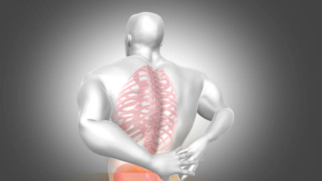 Back Pain Animation video