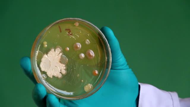 Bacterial colonies grow on media video
