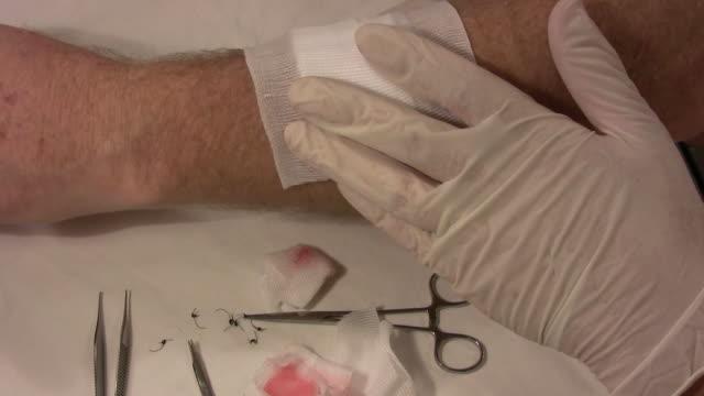 bandage on an arm hd - gazlı bez stok videoları ve detay görüntü çekimi