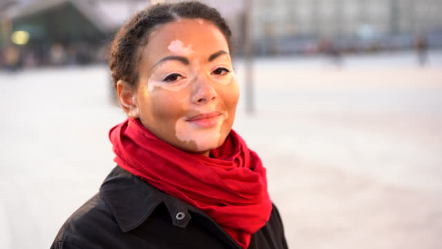 Beautiful african girl with vitiligo standing on the street talking and smiling. Portrait of a girl with skin problems. Autumn season. Woman lifestyle