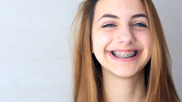 Beautiful smiling girl with retainer for teeth . video
