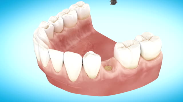Beautiful Tooth implant installation process. Close Up 3d Animation. Full HD 1920x1080. video
