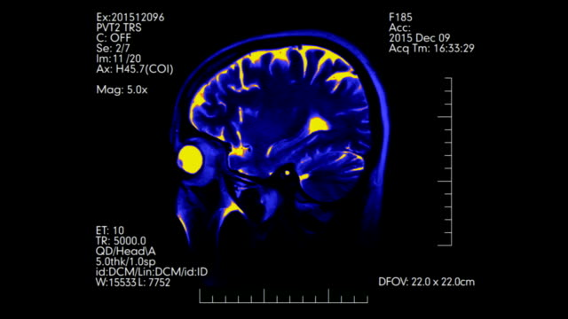 Bi-color blue and orange side view mri brain scan with medical data display animation video