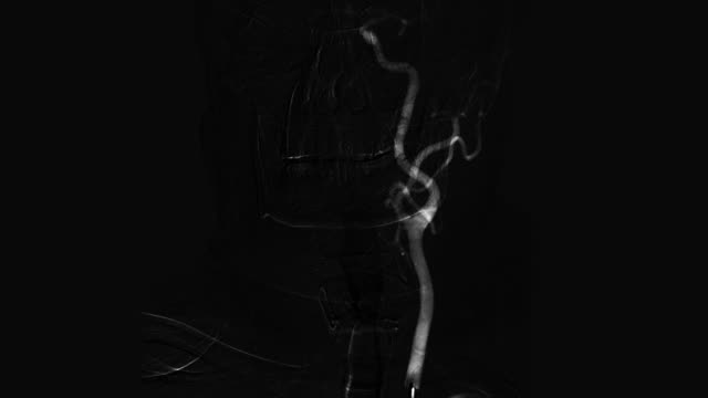 Black and white cerebral angiography scan Black and white cerebral angiography scan. Brain vessels angiography. arteriogram stock videos & royalty-free footage