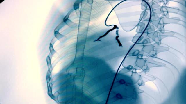 vídeos y material grabado en eventos de stock de imagen en blanco y negro de la angiografía de los vasos sanguíneos en el cuerpo humano. chequeo médico y examen. problemas del corazón y los vasos sanguíneos en el cuerpo. monitoreo de rayos x de los vasos sanguíneos - arteriograma