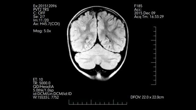 Black and white MRI brain scan animation video