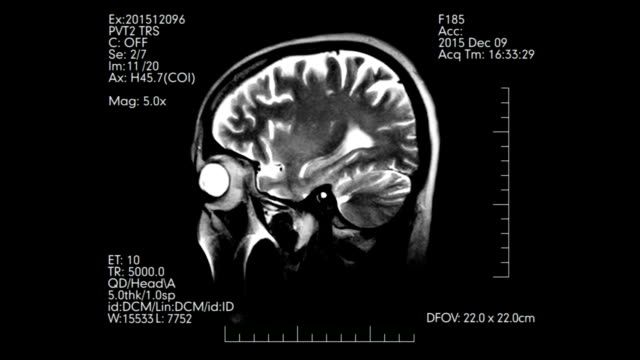 Black and white MRI brain scan profile animation with medical data video