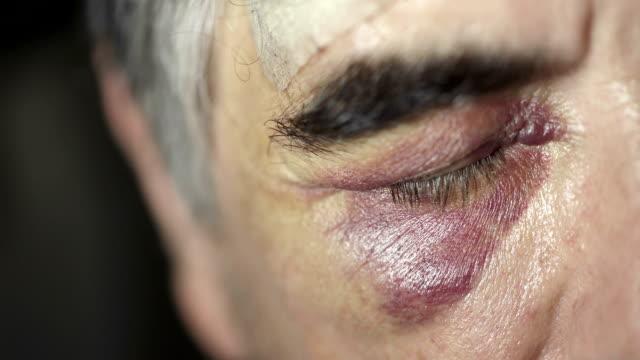vídeos y material grabado en eventos de stock de ojo negro de hombre caucásico 50 años - ojo morado