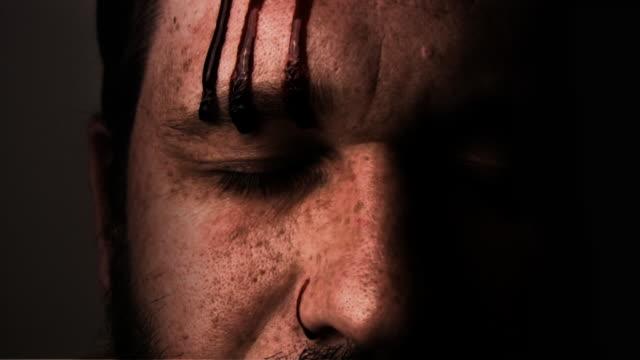 krwawienie głowa - rana filmów i materiałów b-roll