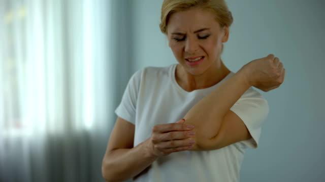 vídeos de stock, filmes e b-roll de mulher loira sofrendo de dor de cotovelo, segurando seu braço dolorido, lesões e cãibras - articulação humana