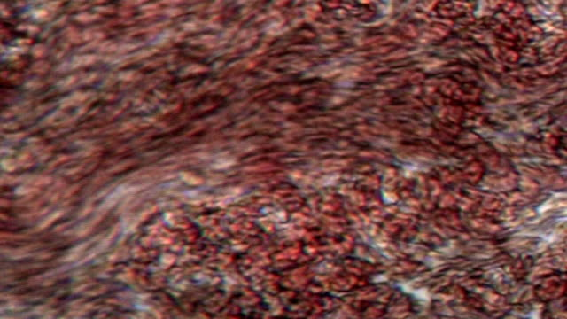 Blood cells Flowing blood cells under microscope blood vessel stock videos & royalty-free footage