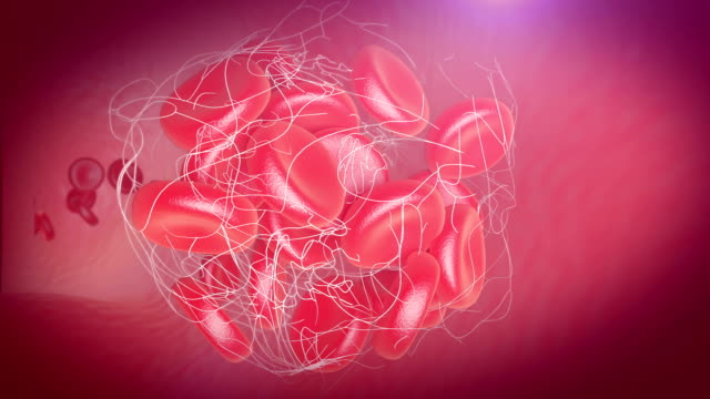 Blood Cells Thrombus blood clot formation inside the blood vessel. blood clot stock videos & royalty-free footage