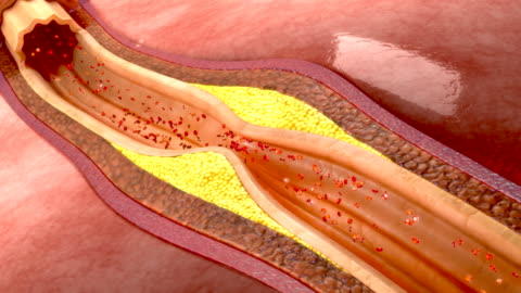 Blood clot in coronary artery If a blood clot develops in one of these arteries, the blood supply to that area of the heart muscle will stop. This is known as a heart attack, or in medical terms a coronary thrombosis or myocardial infarction. A heart attack will cause severe chest pains behind the breast bone, often radiating towards the left arm. high up stock videos & royalty-free footage