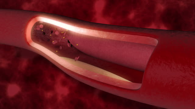 Blood clot in the veins Animation showing blood clot in the veins problem. blood clot stock videos & royalty-free footage