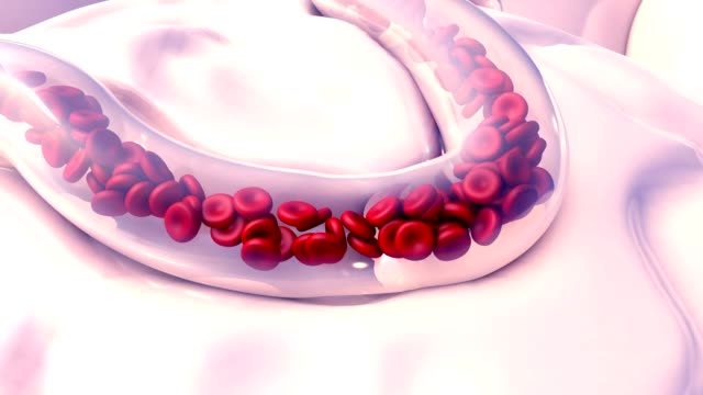 Blood Clots in blood vessel