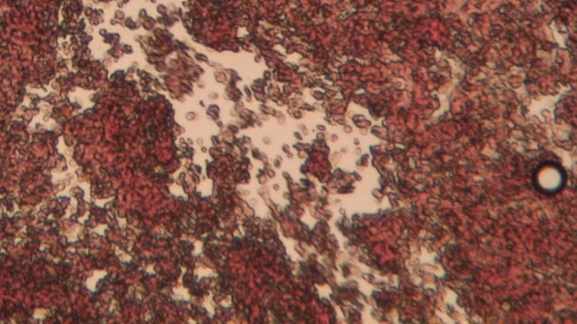 Blood flow Blood under microscope,  flowing fast microscope stock videos & royalty-free footage